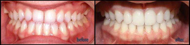 Invisalign case before and after
