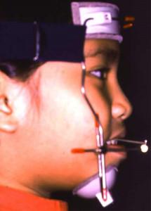 Reverse pull headgear corrects underbite